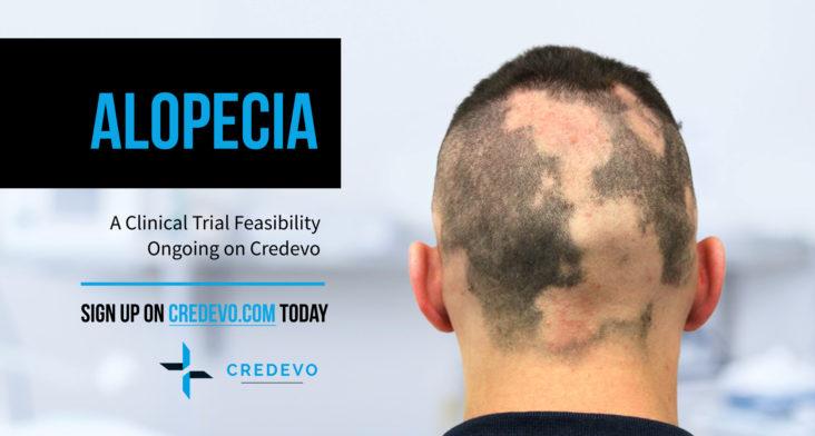 alopecia_clinical_trial_feasibility_credevo